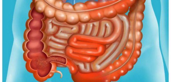 La maladie de Crohn : définition, symptômes, traitement